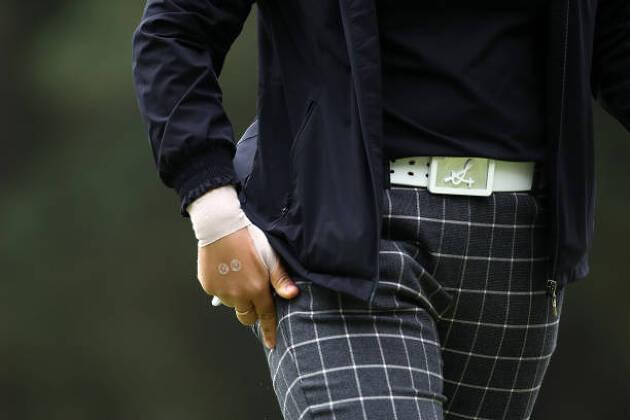 ゴルフで手首を痛めた経験はありますか?